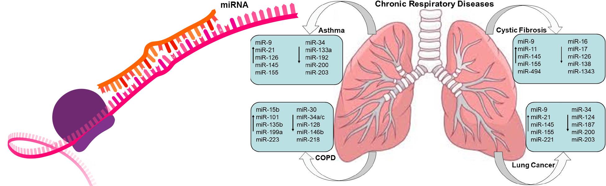 """Targeting respiratory diseases using miRNA inhibitor based nanotherapeutics: Current status and future perspectives"" M. Mehta, S. Satija, K. R. Paudel, V. Malyla, V. K. Kannaujiya, D. K. Chellappan, M. Bebawy, P. M. Hansbro, P. R. Wich, K. Dua, Nanomedicine: NBM, 2020, 102303."