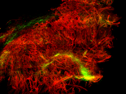 Travelling Through the Blood Vessel Network of a Tumour